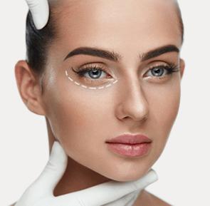 Eyelid Lift (Blepharoplasty)