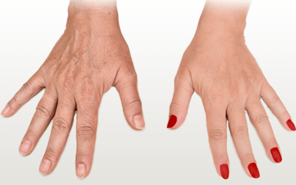 Hand Rejuvenation With PRP