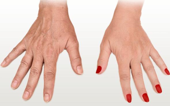 Hand Rejuvenation With PRP